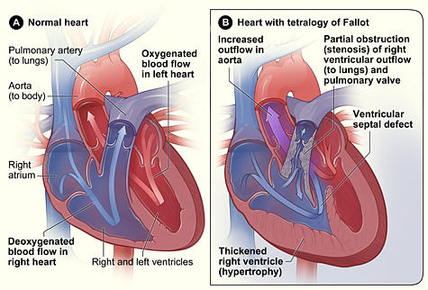 Does anyone know why babies born with tetralogy of fallot have failure to thrive?