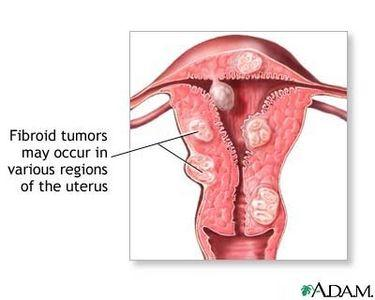 What is the best way to get rid of fibroids?