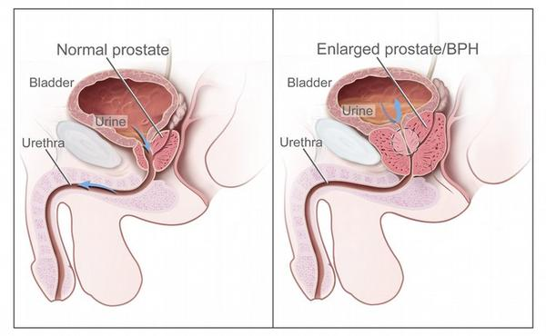 What would a doctor  need to know about caring for someone with prostate hypertrophy?