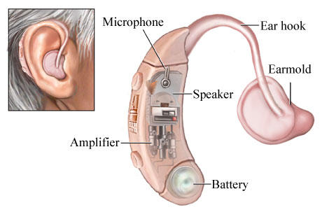 What would happen if a person with perfectly hearing uses a hearing aid? Do they get supersonic hearing?