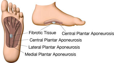 Is potaba effective for plantar fibromas?