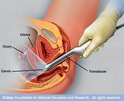 What's the difference between transvaginal & transabdominal ultrasound?