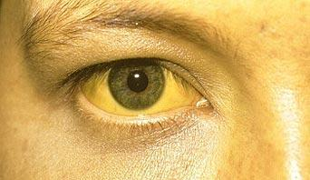 My son has every sign and symptom of a liver problem but the jaundice is very hard to notice. Is that normal?