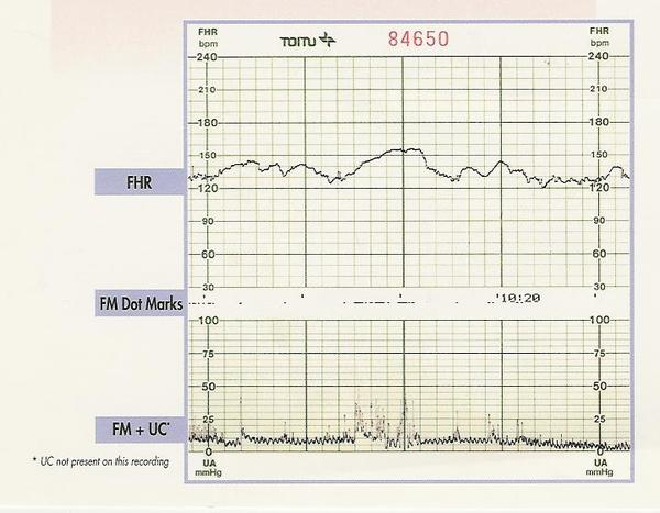 Fetal Heart Rate Chart Third Trimester Fig 3 Ayucar