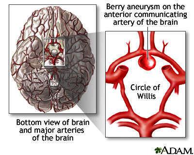 Chances of surviving a brain aneurysm?