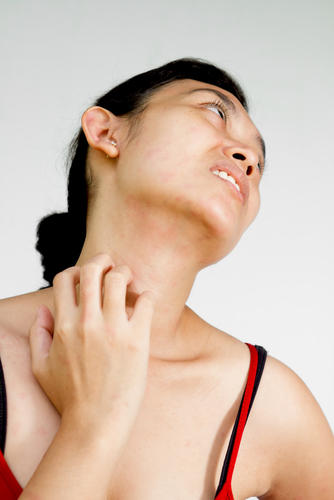 I have a itchy rash and am really tender under my chin?