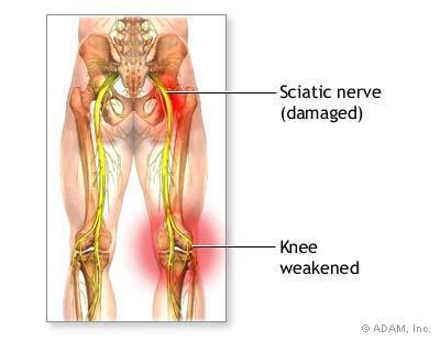 Is surgery helpful for sciatic nerve damage. Burning in leg, numbness, tingling & stumbling?