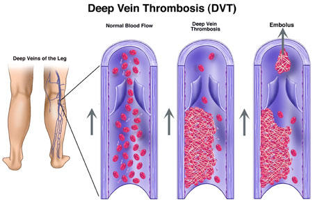 Can a patient with deep vein thrombosis on his/her lower extremity, have a massage on affected area?