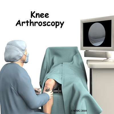 What is the recovery time for a knee arthroscopy before I can run again?
