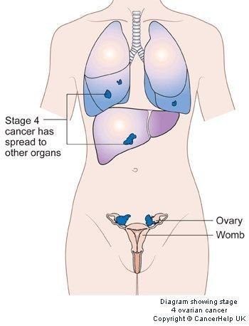 When I was diagnosed with stage  3c ovarian cancer the oncocoligist said they should just call it stage  iv. Is this true ?