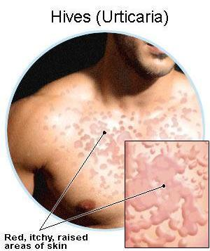 Is there a simple remedy to urticaria?