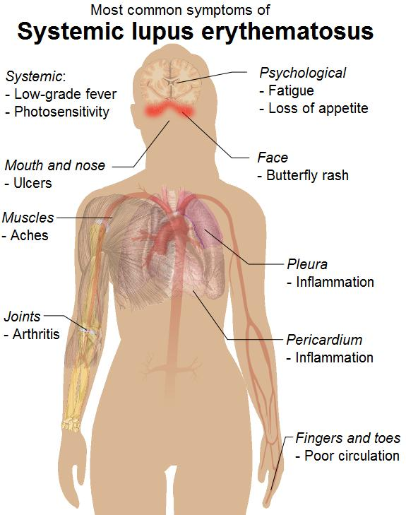 What are the most common symptoms for lupus disease?