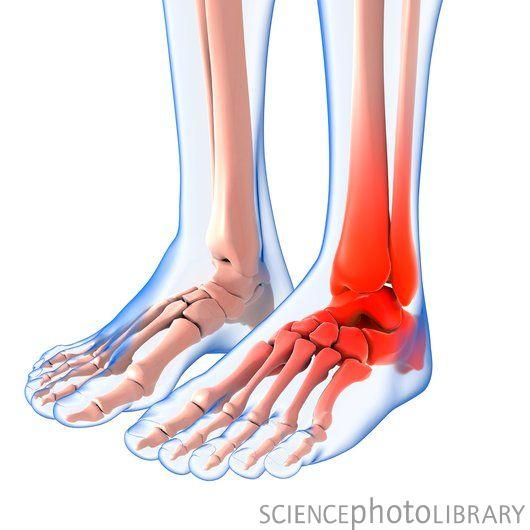 What is the cause of ankle pain (outside) after a run? And how do I fix it?