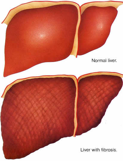 Is vaporized marijuana more dangerous with with liver cirrhosis?