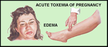 eclampsia edema Gallery