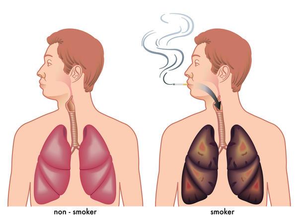 Is nicotrol carcinogenic?