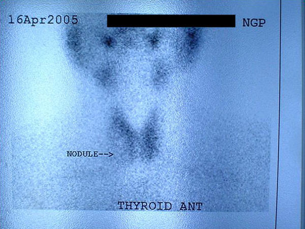 How long does a thyroid scan test take?