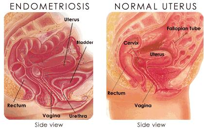 What is the symptoms of endometriosis?