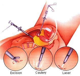 Лечится ли бесплодие 2 степени у женщин лечение