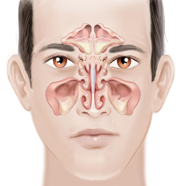 What are common sinusitis complications?