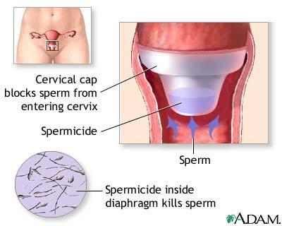 What's a cervical cap?