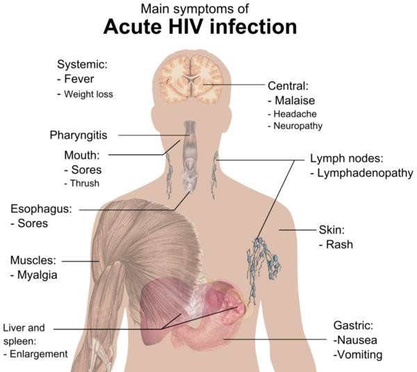 How long after getting HIV do you notice the symptoms?
