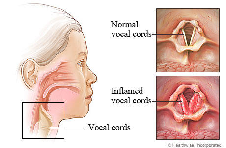 Is there any cure for laryngitis?