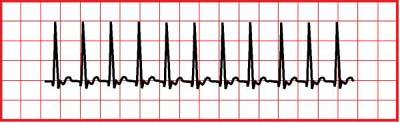 Rapid heart beat at rest reason to call doc?