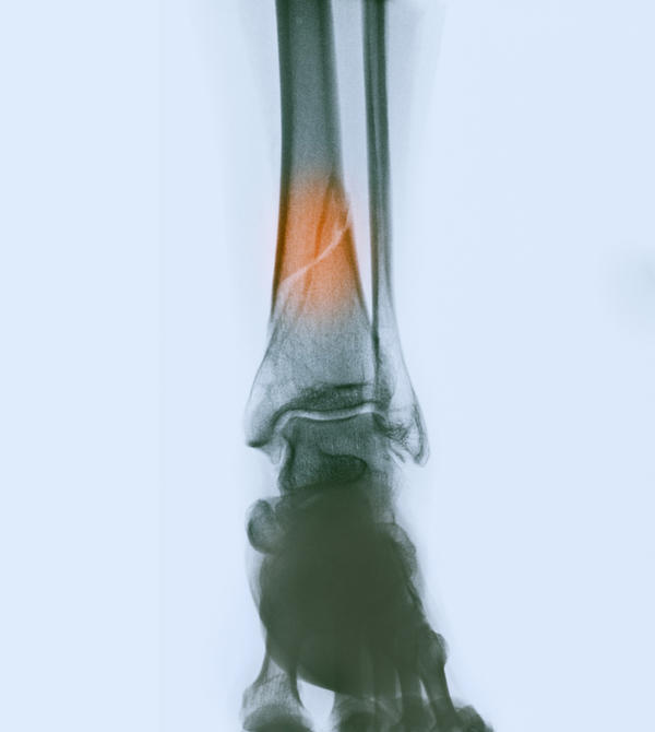 Broken tibia of a 71 year old female--will it heal well?