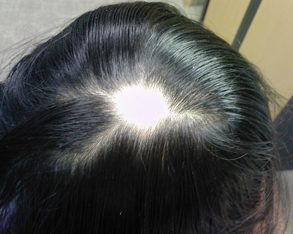 I'm looking for a dermatologist who can treat my case of alopecia.  I live in oakland ca. Please let me know of any recommendations.?