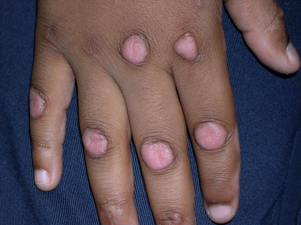 I've been biting my knuckles for 6yrs. I have knots of scared tissue on hand I may have dermatillomania. Any creams to help lighten scars?