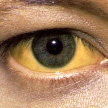 How does cannabis affect jaundice?