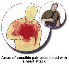 Is there a chest pain part of the ER for those with heart problems?