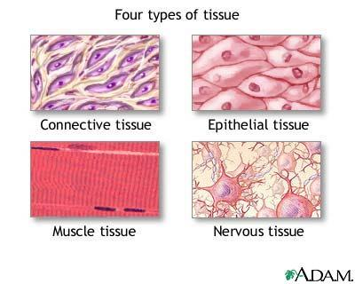 How common is connective tissue dissorder?