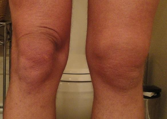 Why is my knee swollen and popping when I walk?