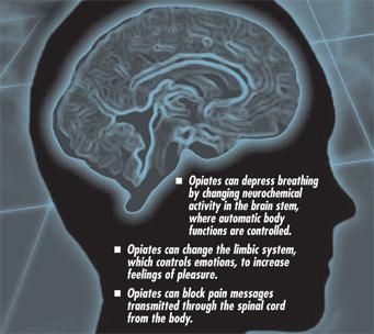 How will herion affect the brain in the long term?