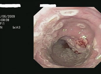 Had endoscopy done last year showed small ulcer  and small duodenal erosion  had  oral thrush recently do I need another endoscopy?