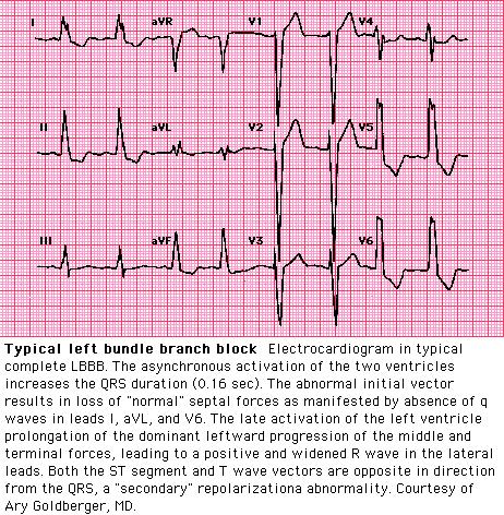 Can LBBB be reverted?