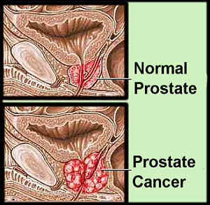 What are the chances of having prostate cancer vs. Having prostatitis at age 41?