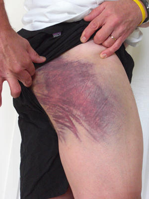 Can you get a blood clot from a bruise - Doctor answers