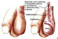 What can I do for my varicocele?