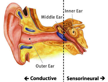 What does an ENT do when you come in with sudden hearing loss in one ear?