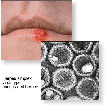Is there a bliod test you can take to tell if you have the herpes virus?