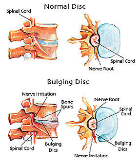 What are common problems from bulging disc?