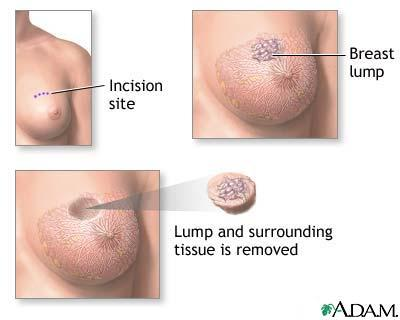 What kind of surgery is the best way to remove the breast tumor and a small amount of surrounding normal tissue?
