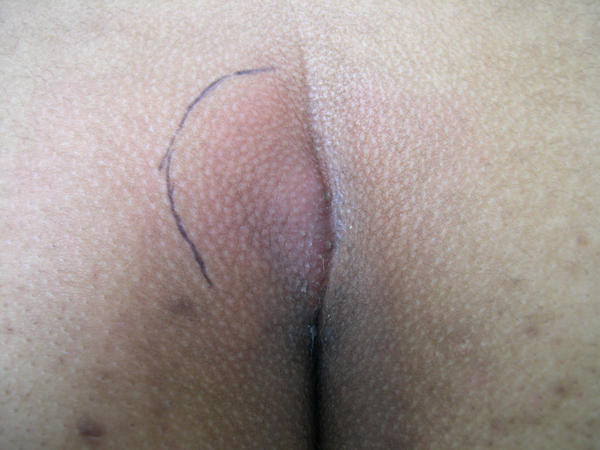 There is a huge painfull lump inside buttock cheek of my boyfriend. Its hard and maybe 2 inches or more long and maybe 1 inch wide. No head.?