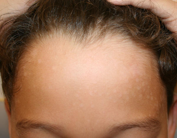 Can you use selenium sulfide shampoo on your body to treat body ringworm?