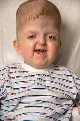 What is some information about apert syndrome disease?
