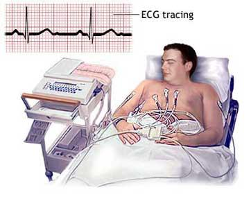 What could cause sudden rapid heart beat and shortness of breath?