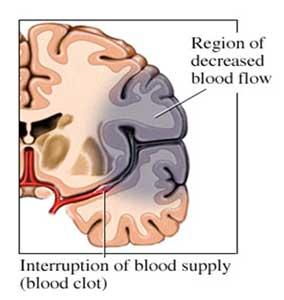 Does a cva and TIA affect the same area of the brain?